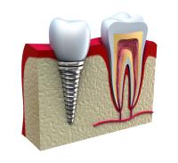 Dental implant (Diş implantı) nedir?