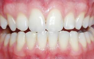 Diş Beyazlatma (Bleachıng)